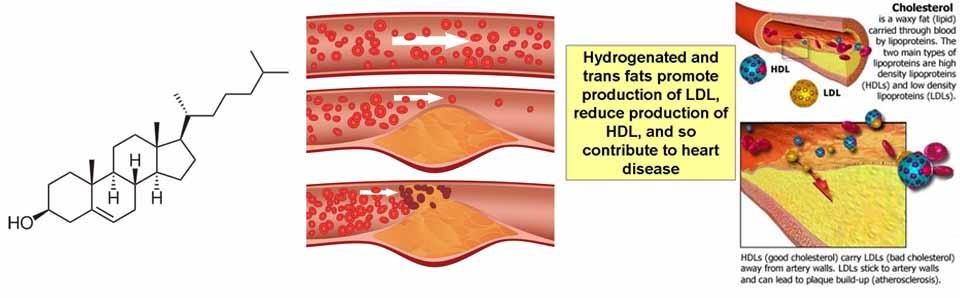Cholesterol-info